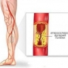 Атеросклероз судин нижніх кінцівок