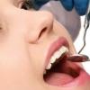 Болить зуб: що робити? Народні засоби від зубного болю