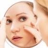 Як допомагають антибіотики від прищів на обличчі та їх види