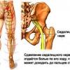 Ішіалгія: симптоми і лікування