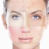 Як виглядає комбінована шкіра і чим це зумовлено?