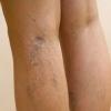 Видалення судинних зірочок на ногах: який спосіб вибрати