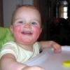 Лікування алергічного дерматиту у дітей