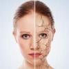 Лікуємо суху, що лущиться шкіру