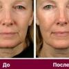 Маски для глибокої підтяжки шкіри обличчя в домашніх умовах
