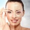Порушення пігментації шкіри: причини появи пігментних плям на тілі