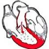 Недостатність клапана легеневої артерії