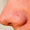 Деякі хвороби шкіри людини