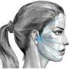Неврит лицьового нерва