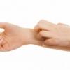 Чому сверблять руки: основні причини