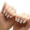 Чому на нігтях з`являються плями