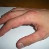 Чому виникають червоні ущільнення на шкірі