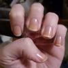 Чому жовтіють нігті: основні причини та ефективні способи боротьби