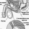 Наслідки вазектомії і відгуки про операцію