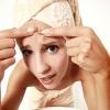 Причини і лікування запалених прищів на обличчі