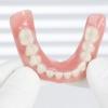 Протезування зубів: види і технології