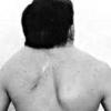 Синдром кліппеля-фейль