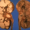 Туберкульоз сечостатевої системи (нефротуберкулез)