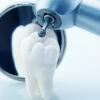 Видалення зубного каменю ультразвуком