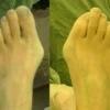 Внутрішнє і зовнішнє народні засоби позбавлення від кісточок на ногах