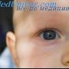 Вроджена вентрікуломегалія. Частота і діагностика вентрікуломегалія у плода